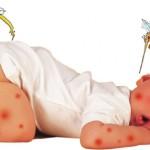 Trẻ bị sốt xuất huyết