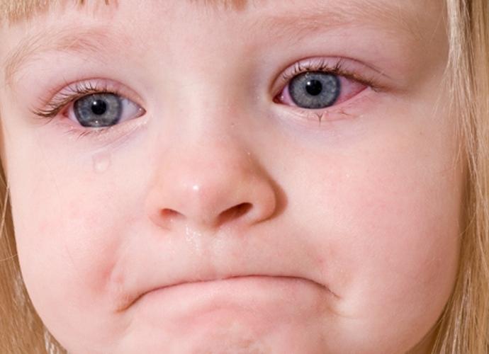 Những bệnh tưởng chừng đơn giản nhưng lại có biến chứng nguy hiểm ở trẻ