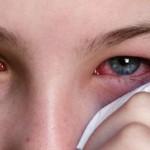 Trẻ bị đau mắt trắng