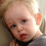 trẻ bị thuỷ đậu