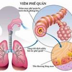 Trẻ bị viêm phế quản, viêm họng có thể dẫn đến ung thư phổi